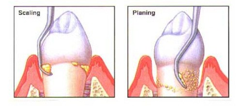 periodontal and gingivitis treatment 3