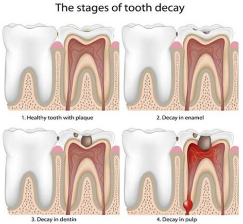 root canal treatment 2