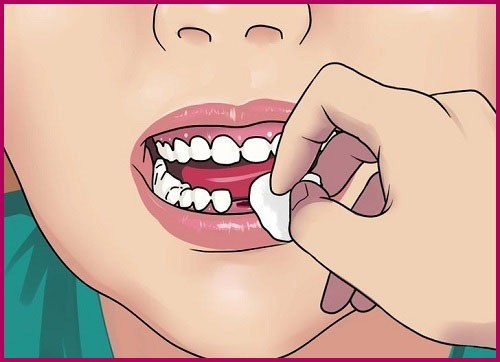 Tooth extraction 4