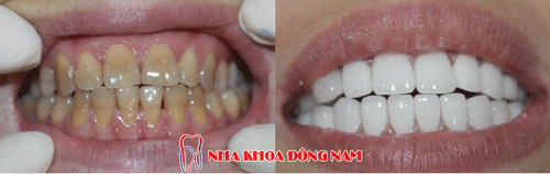 dental crown 27